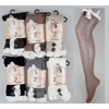 Over The Knee Stockings With Lace Trims